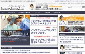 インプラント名医・専門医監修のインプラント情報サイト。